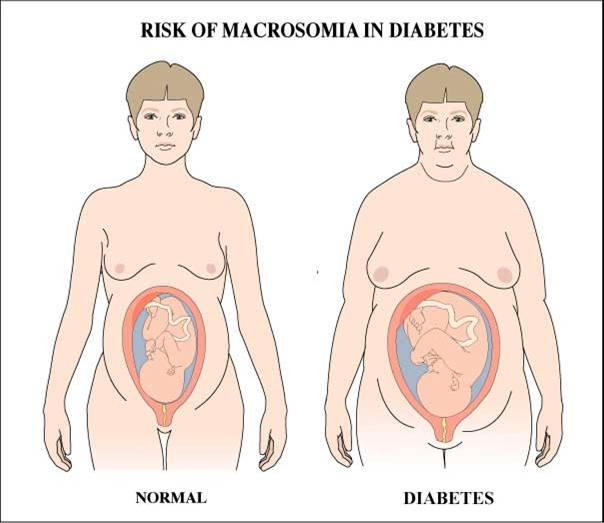 Can diabetes be detected before birth